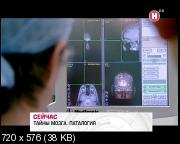 Тайны мозга. Патология (2011) DVB
